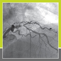 Clinical Case Update: Provisional Bifurcation Stenting with Robotic PCI