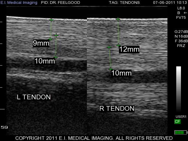 tendon comparative measurement