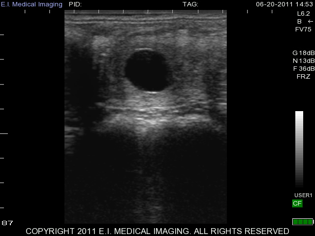Equine 15 day pregnancy