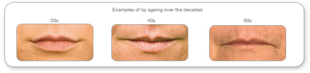 lips ageing