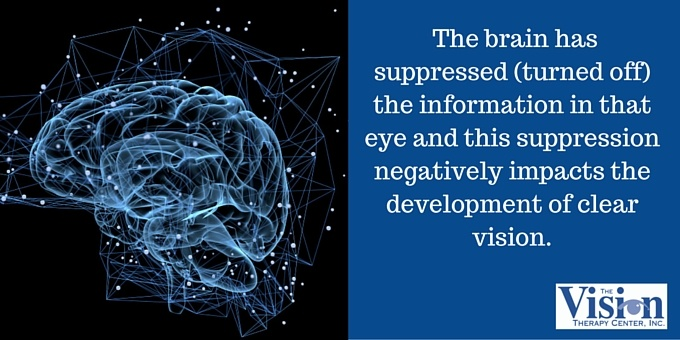 the brain has suppressed (turned off) the information in that eye and this suppression negatively impacts the development of clear vision.