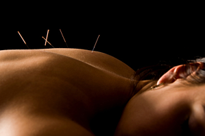 acupuncture for soft tissue pain