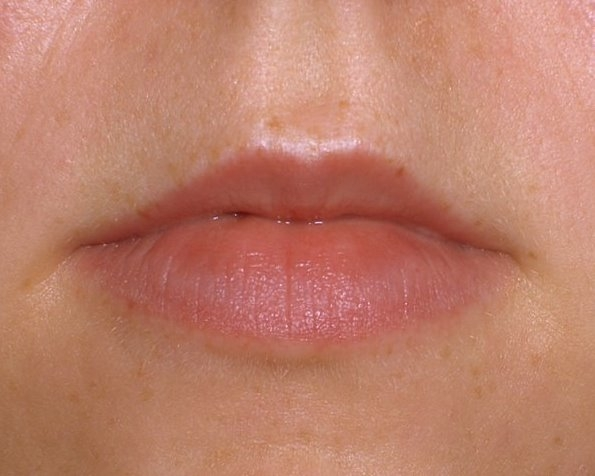 juvederm lip  before photo by Dr. Brian Kerr
