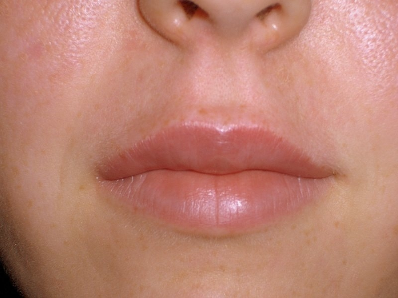 Juvederm lip AFTER by Dr. Brian Kerr