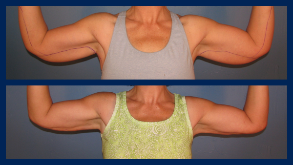 Boise S 1 Cosmetic Blog Smartlipo Arms