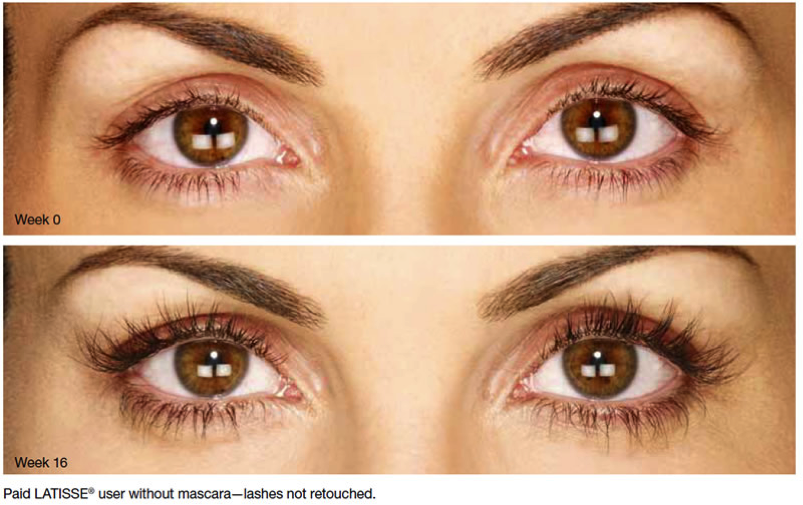 Permalink to Latisse Eye Color Change