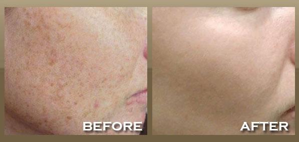 ipl-photofacial-brown-spots
