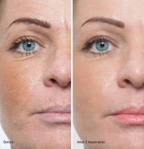 before-and-after-microneedling-silktouch-med-spa-290x300.jpg