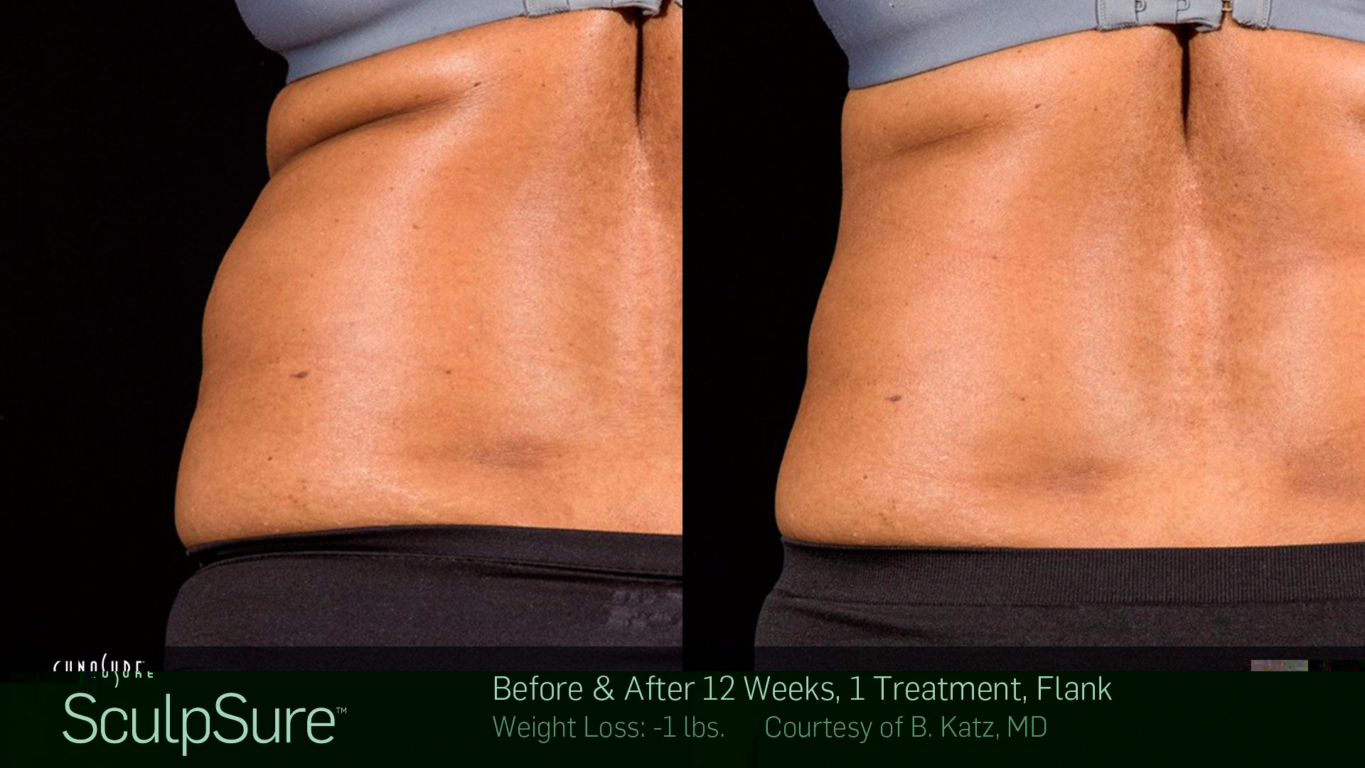 sculpsure-before-after-boise.jpg