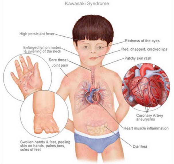 Kawasaki Disease Pathophysiology Diagram