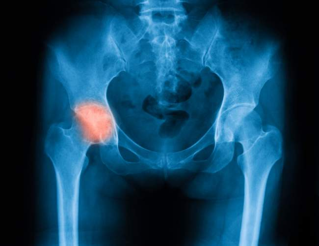 What Not To Do To Relieve Hip Flexor Pain