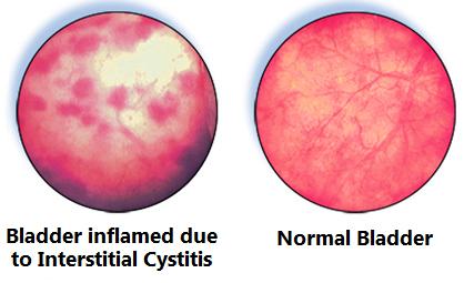 interstitialis cystitis