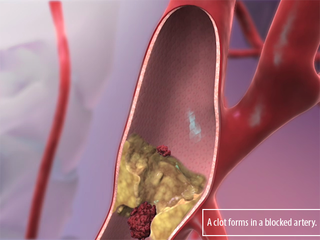 Ischemic-Stroke-blood-clot-atherosclerosis