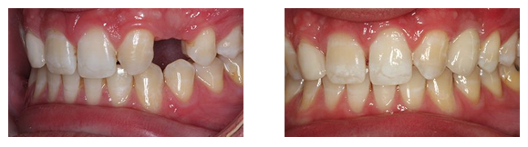 Dental Implants Before & After