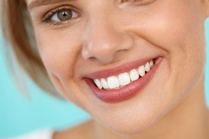 What to Look for in a Cosmetic Dentist