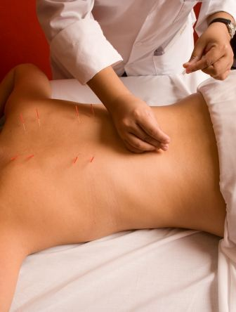Acupuncture_8