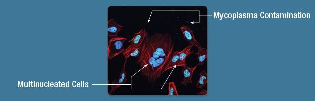 IF Mycoplasma Contamination