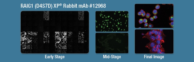 RAIG1 (D4S7D) XP® Rabbit mAb #12968