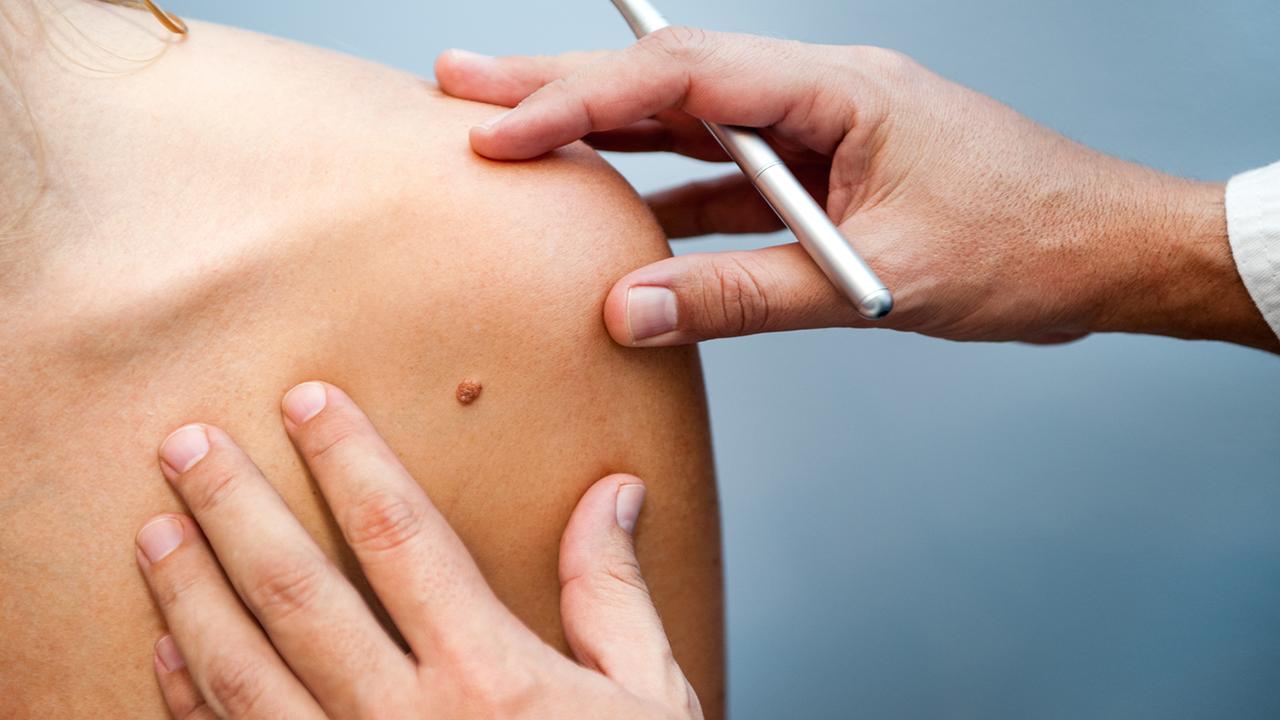 ¿Qué es el cáncer tipo melanoma? 4 preguntas que resolverán tus dudas.