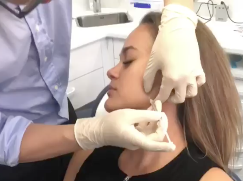 When administered correctly (such as by a qualified dentist), botulinum toxin has many safe & beneficial uses. Let's look at your questions about anti-wrinkle injections.