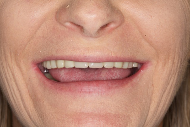 We recently had the pleasure of restoring the smile of a patient who was missing all her teeth with Fixed on Four or More dental implants.