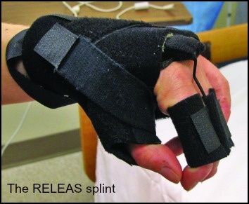 The RELEAS Splint: For Some Stroke Patients, It Can Mean a New Lease on Life