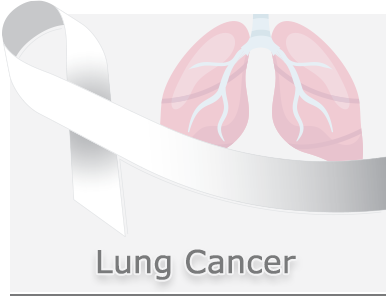 Lung-Cancer-Panel