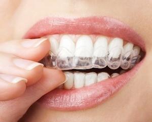 3 Key Ways That Dental Braces Have Evolved - yoursmiledirect