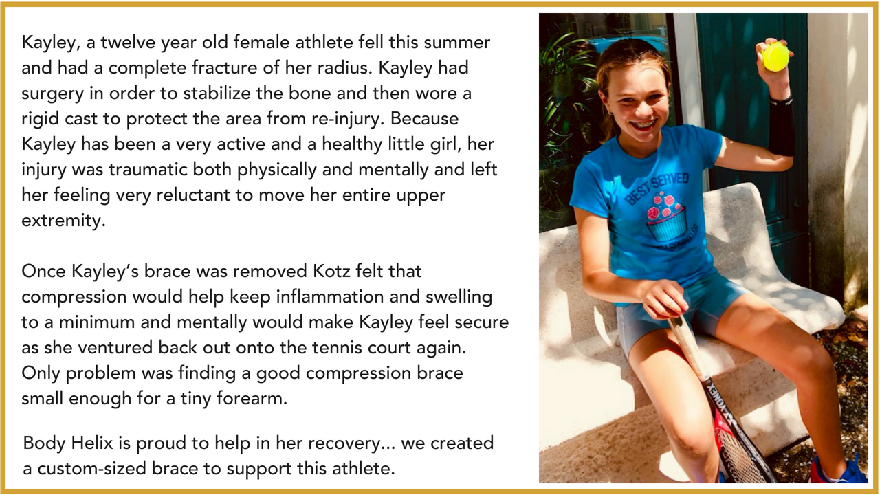 Kayley, a twelve year old female athlete fell this summer and had a complete fracture of her radius. Kayley had surgery in order to stabilize the bone and then wore a rigid cast to protect the area from re-injury. Be (1)