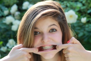 Are extractions necessary in order to get braces?