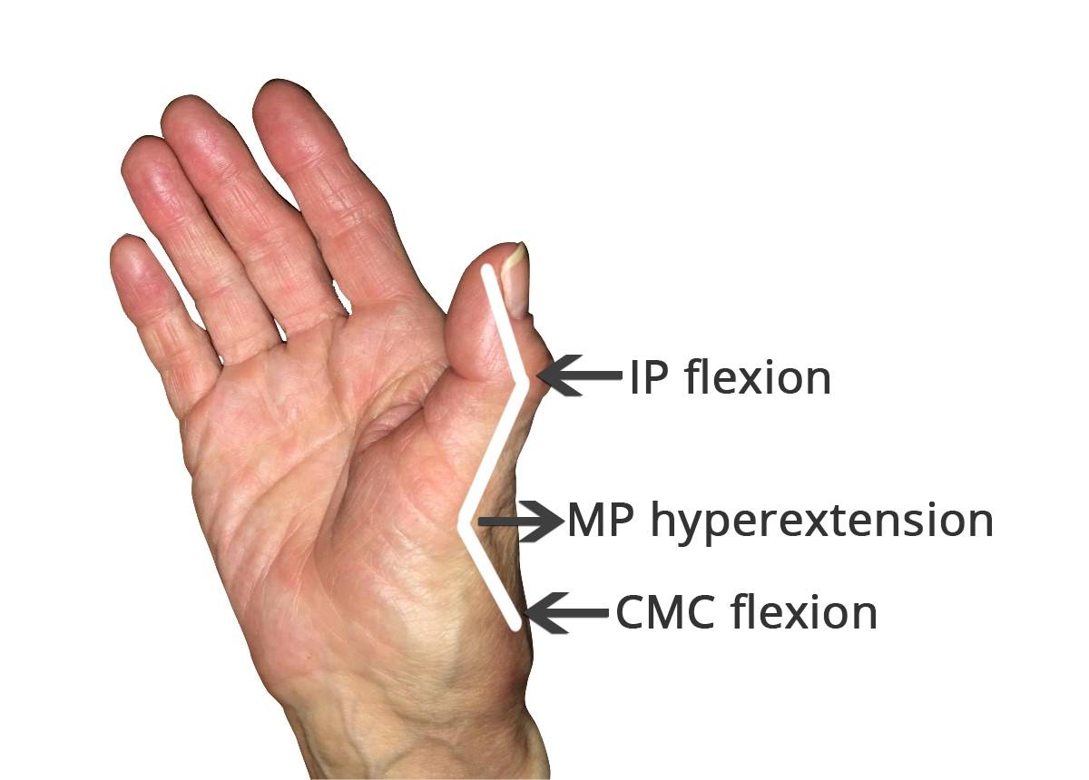 How to Manage a Thumb Deformity from Rheumatoid Arthritis