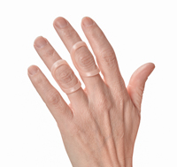 Treating Swan Neck Deformity with Oval-8 Finger Splints