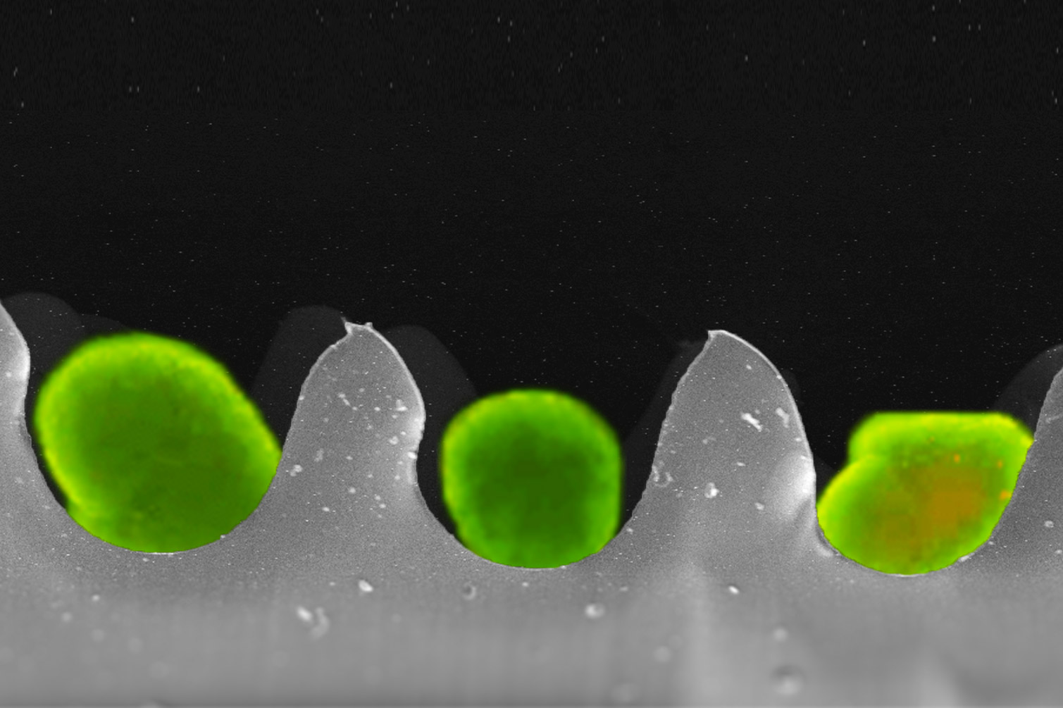 A microscopic 'egg carton' designs makes it possible to save more pancreatic islet cells for transplantation to cure Type1 diabetes patients