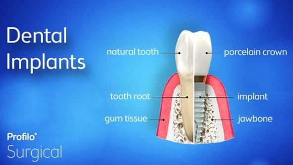 The Important Role of a Surgeon in Placing Dental Implants