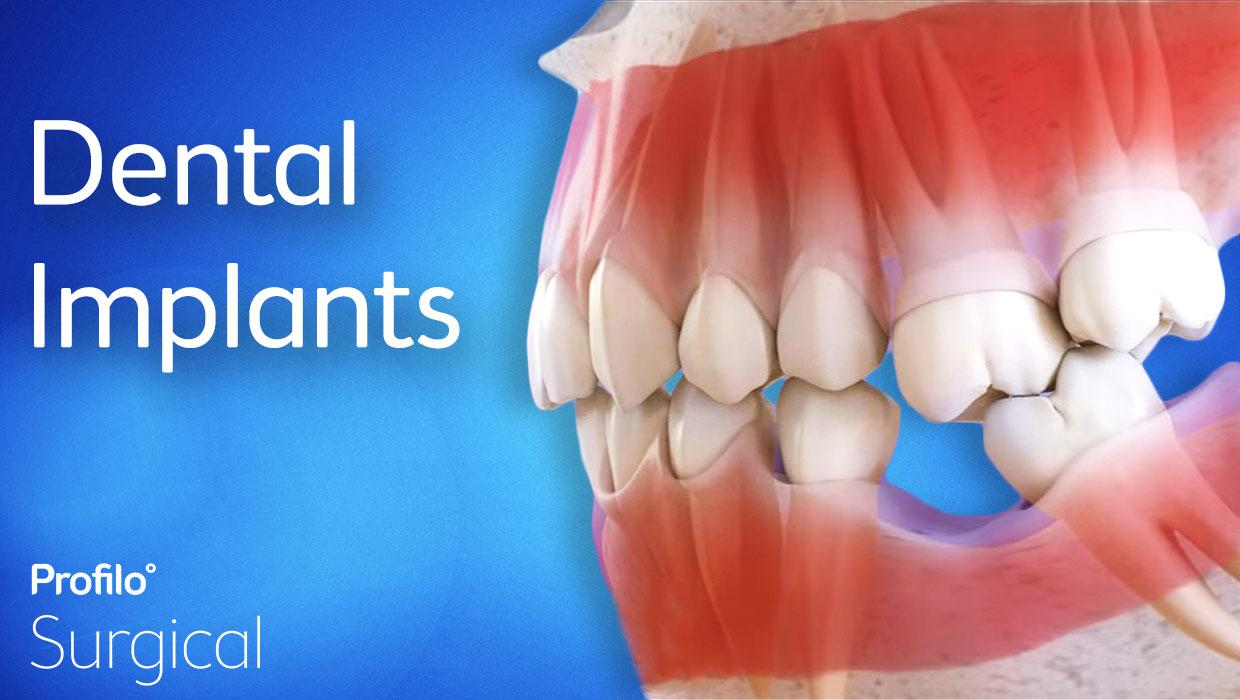 Closing the gap with dental implants