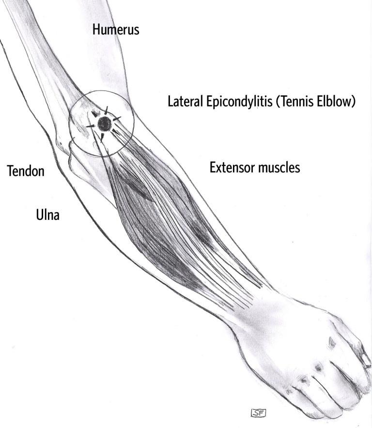 See A Specialist Today For Elbow Pain Ortholive