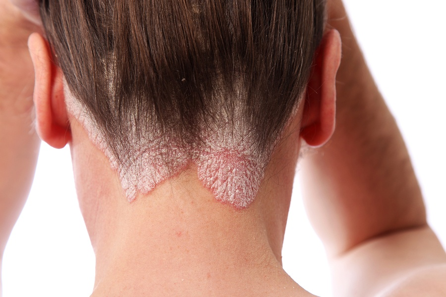 bigstock-Psoriasis-On-The-Hairline-And--6556784.jpg