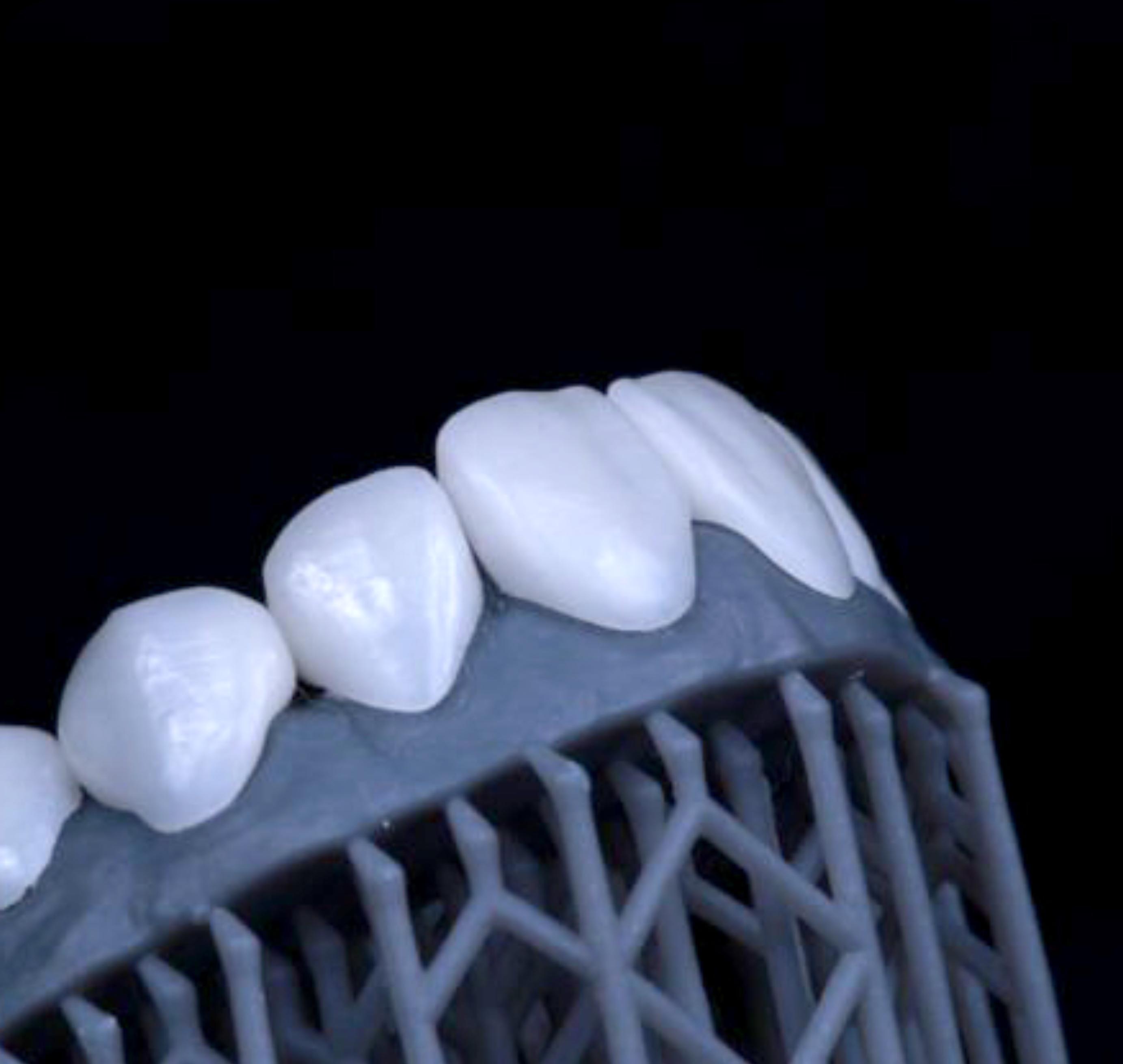 A natural-looking dental restoration created using Digital Smile Design.