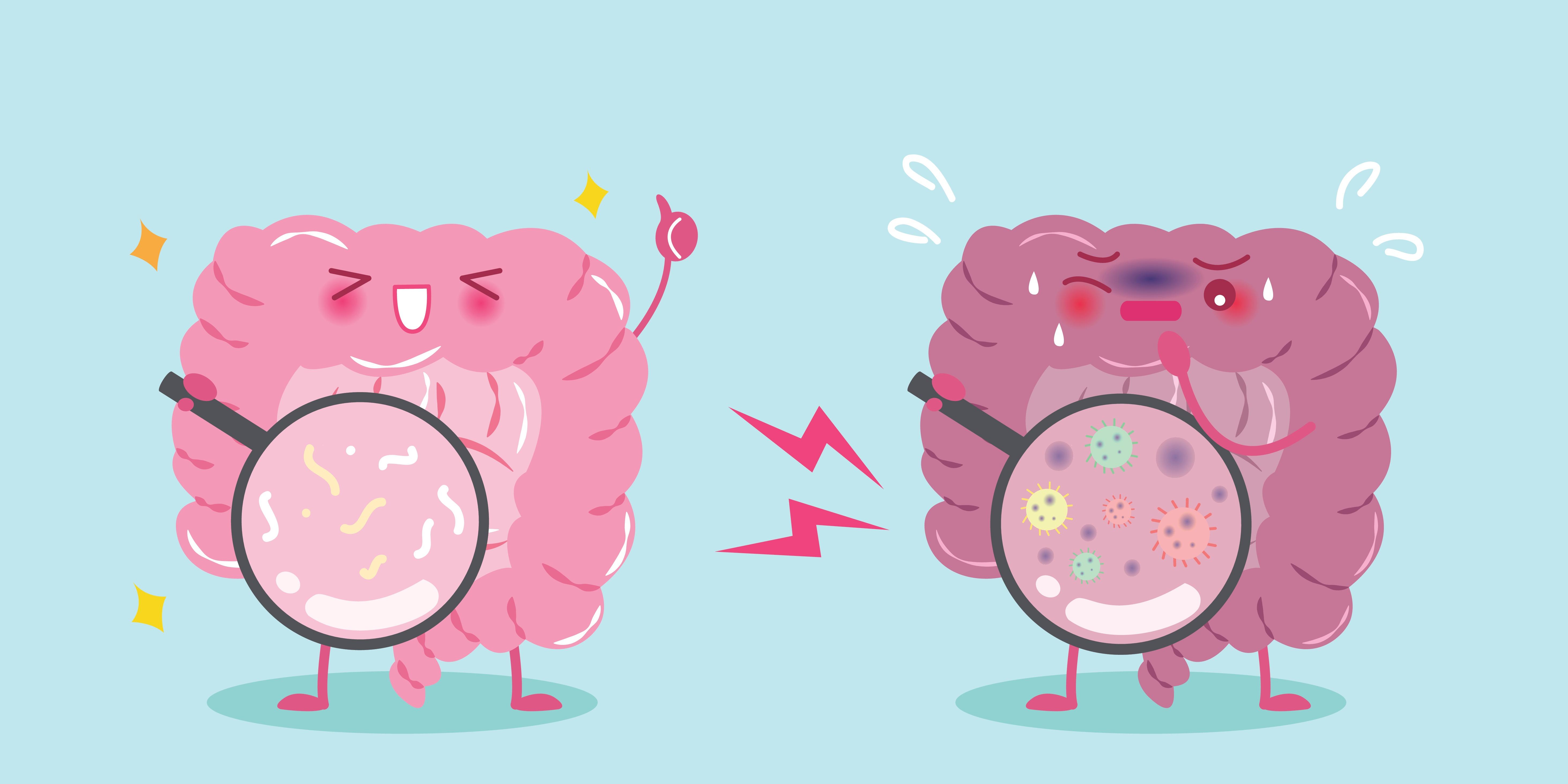 Research Insight - Benefits of Bacillus Probiotics and Rheumatoid Arthritis