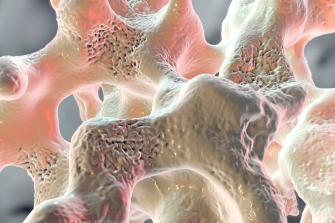 The Importance of Vitamin K2 for Bone Health