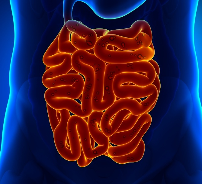 Identifying Small Intestinal Bowel Overgrowth (SIBO) - Preferred Testing and Most Common Symptoms