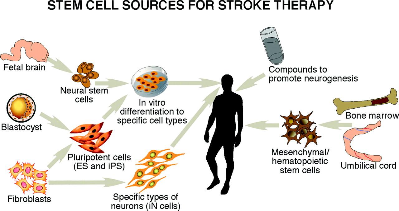 Pluripotent Stem Cells To Treat Ischemic Stroke