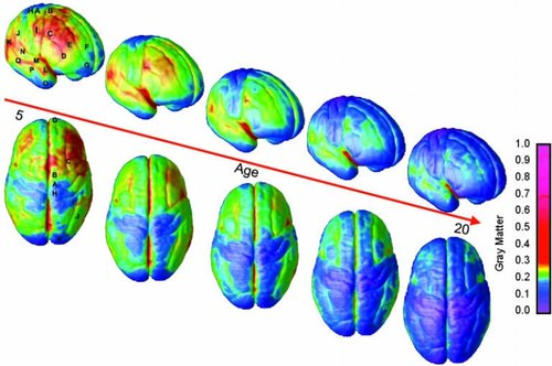 Adolescent brains' frontal lobe are less developed. As we age our brain continues to change well into our twenties.