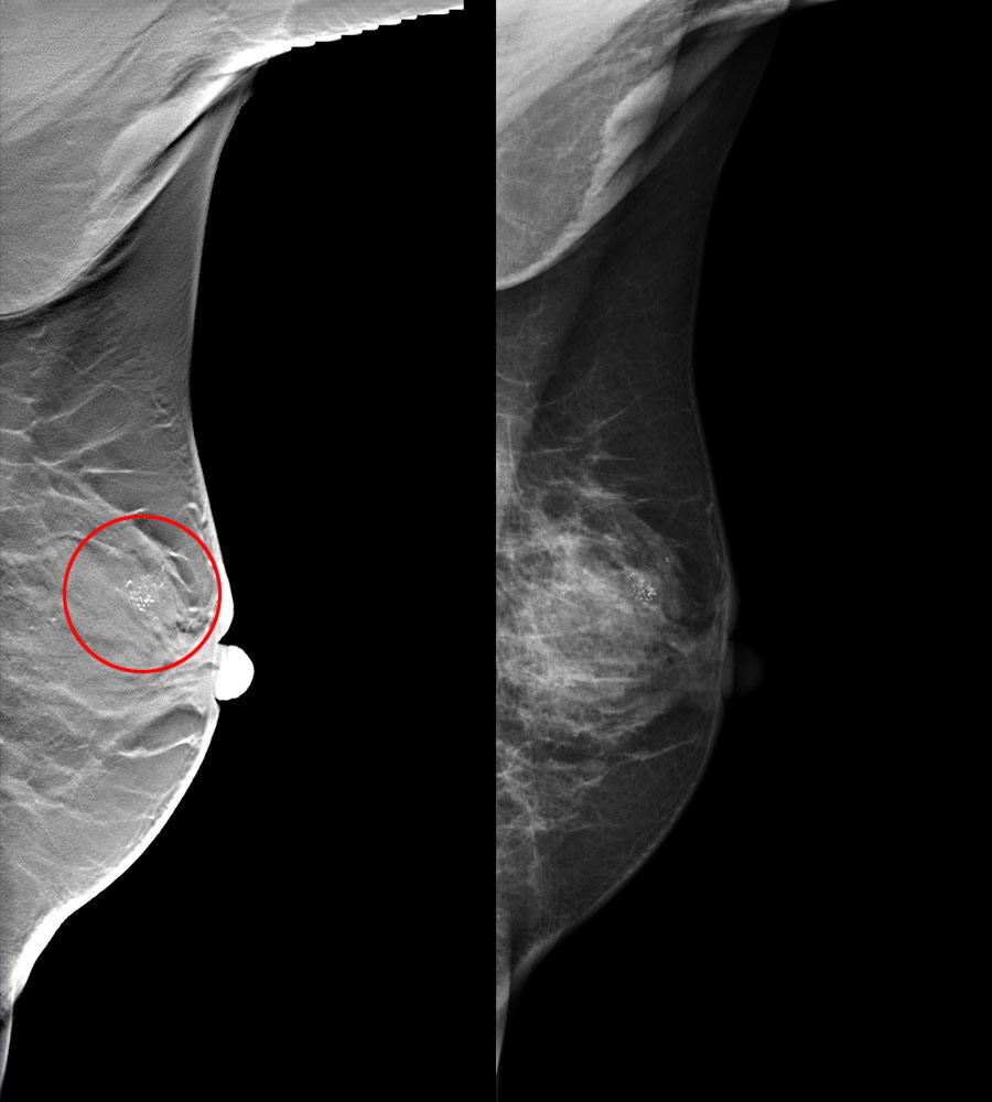 Breast screening: professional guidance