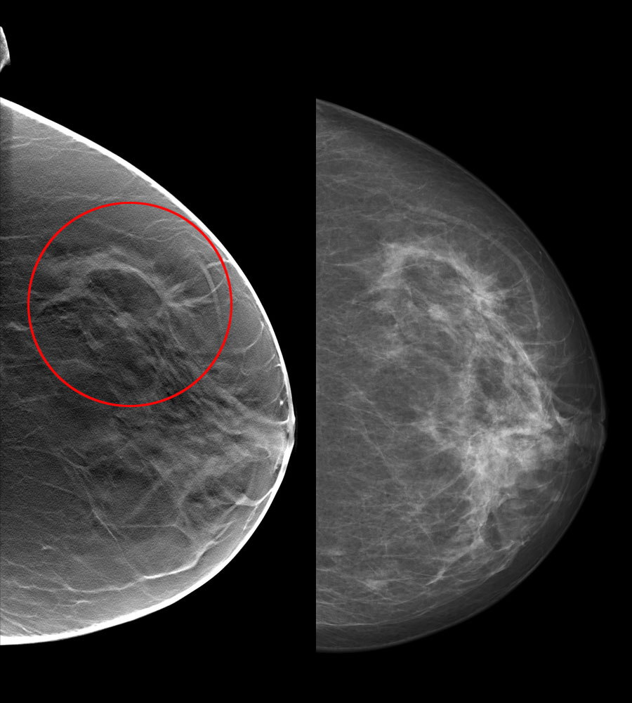 digital tomosynthesis breast imaging This is an excellent book on imaging of breast diseases using digital tomosynthesis -- doody's review (starred review) digital breast tomosynthesis.
