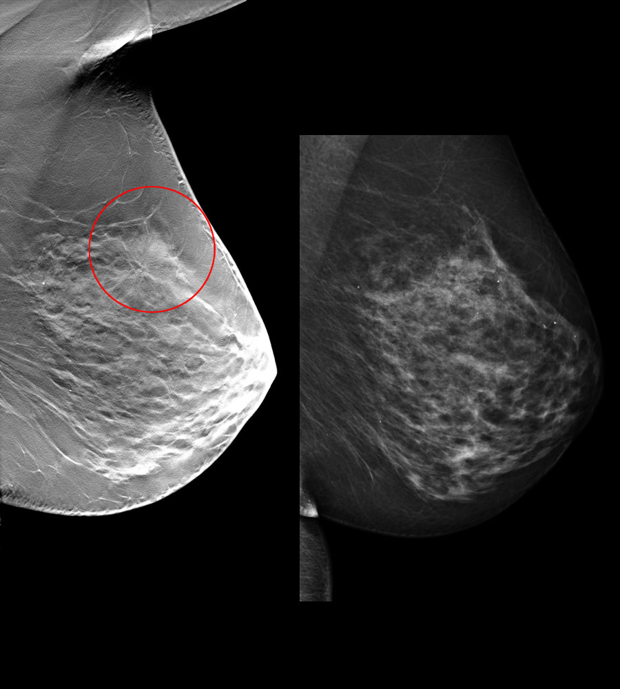 tomosynthesis images 2d images to be generated as a part of the breast tomosynthesis exam the 2d images created from c-view mammography: digital breast tomosynthesis policy number: 6.