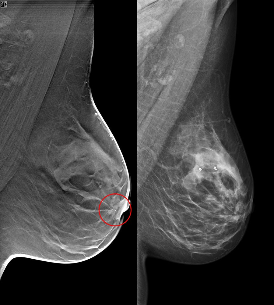 siemens mammography tomosynthesis · breast tomosynthesis (tomo) is a new 3d breast imaging technique with the potential to replace mammography in dec 2009, duke was 1st us site to receive.