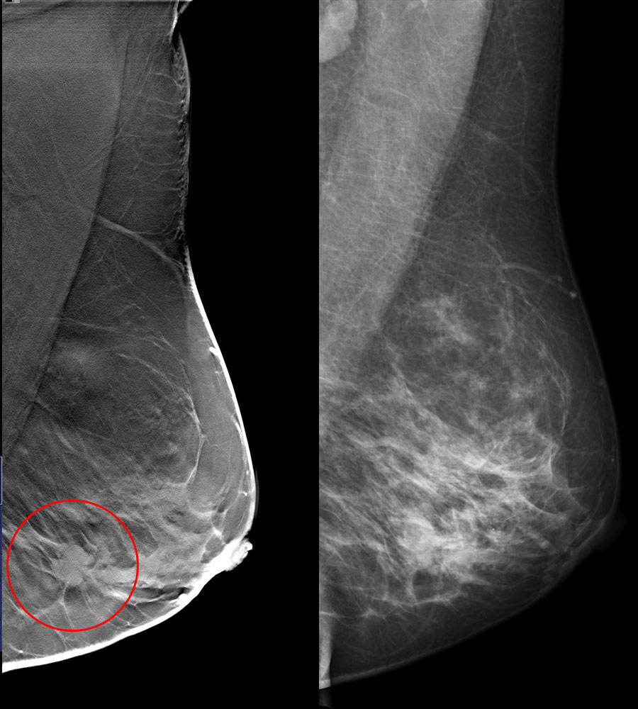 tomosynthesis reconstruction Tomosynthesis is used in 3d mammography in order to create a three dimensional image of breast tissue for better examination.