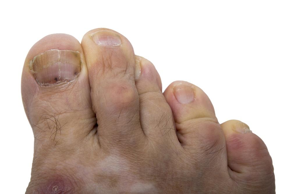 On small black toenail dot Black Lines