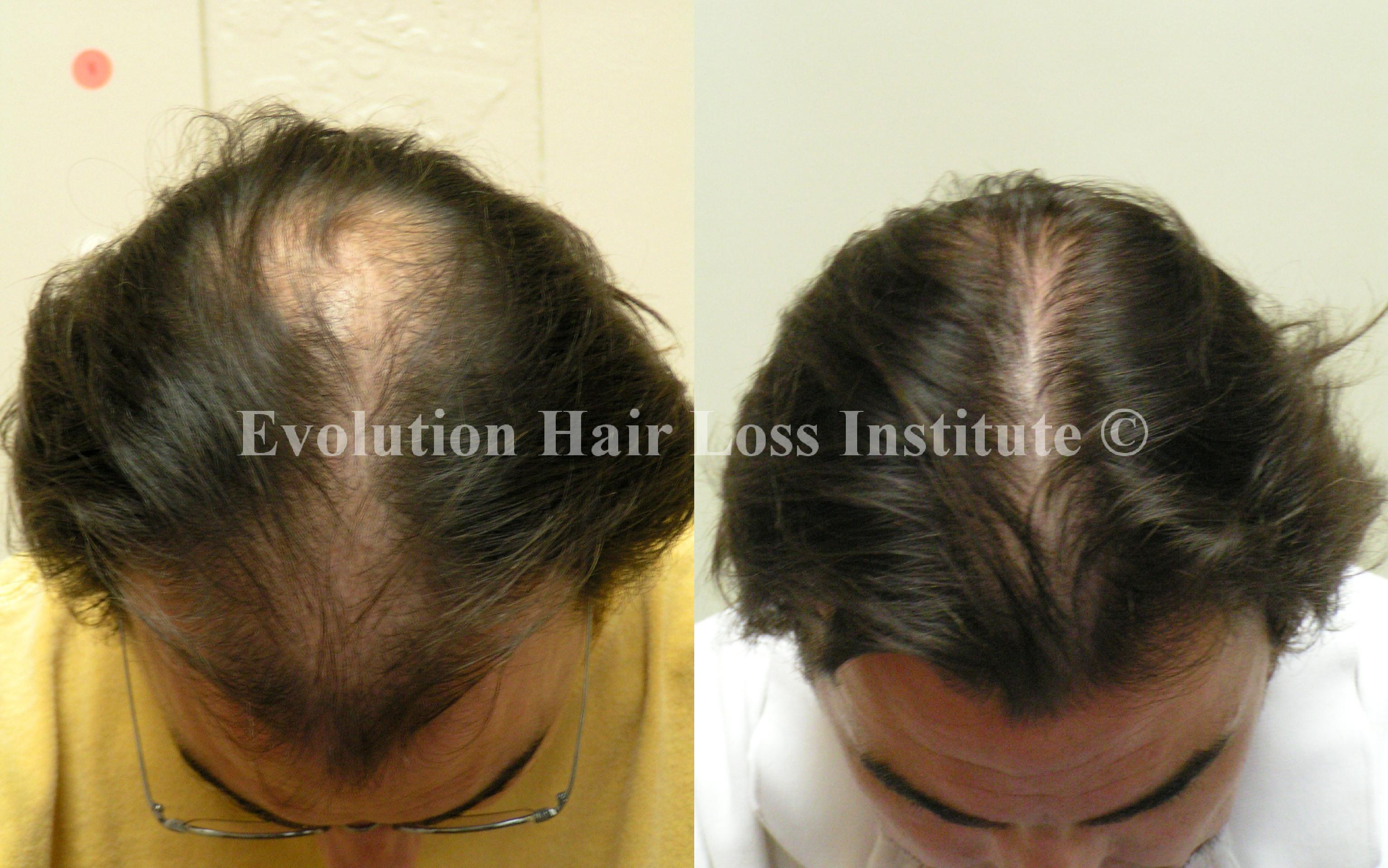Male Natural Hair Regrowth